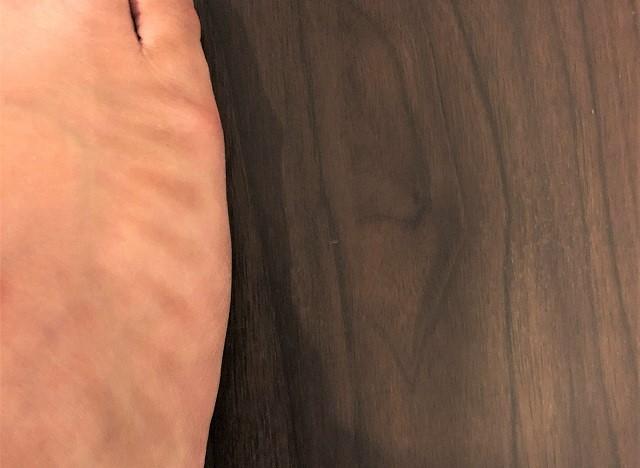 足の甲に紐の網目の日焼け跡